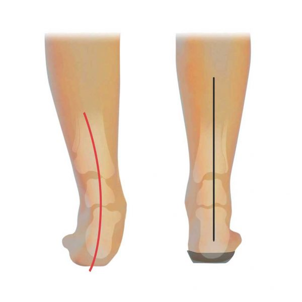 re-alignment of lower leg