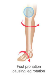 Knee Pain - leg rotation