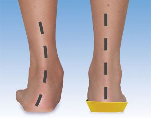 Orthotics For excess pronation and fallen arches