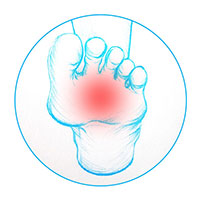 Ball of Foot pain (Metatarsalgia): Causes and Treatment Footlogics