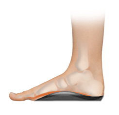 aba917c401 Plantar Fasciitis (heel pain) - causes and treatment - Footlogics