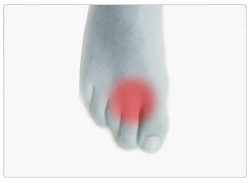 Morton's Neuroma: Symptoms, Causes and Treatment Footlogics